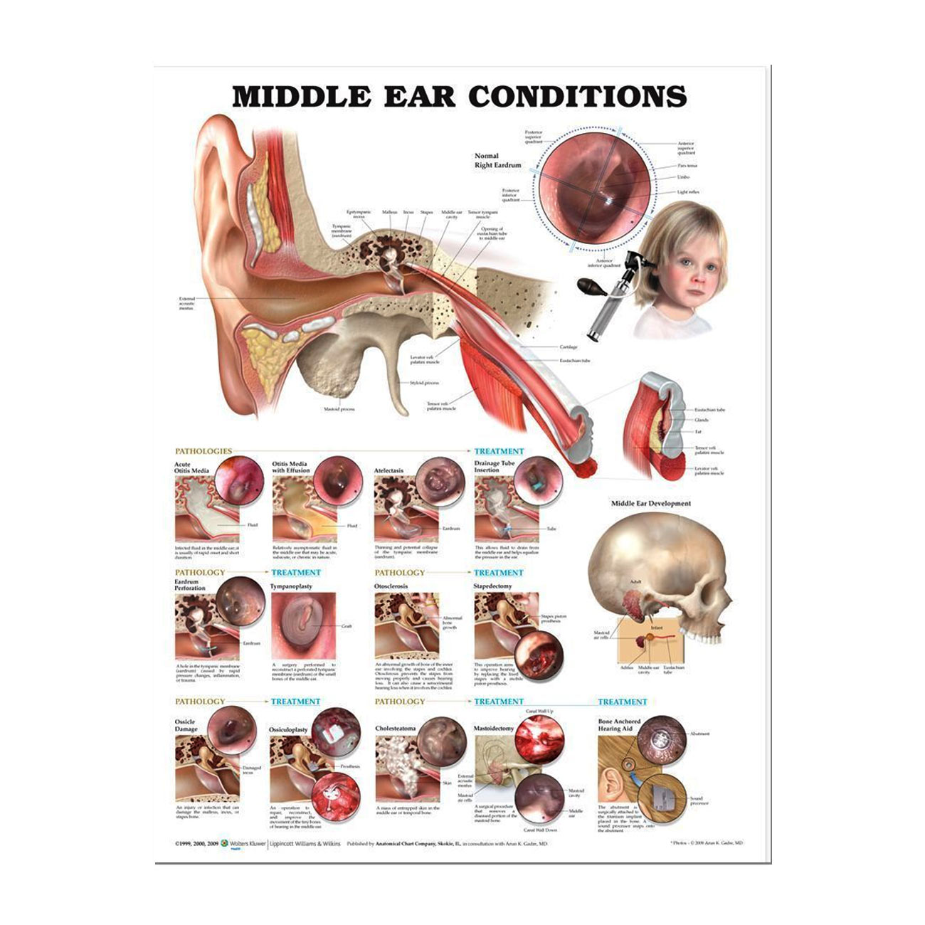 Middle Ear Conditions - Laminated Chart Poster 20 in. x 26 in.